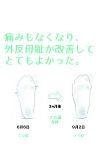 外反母趾治療のSN様の外反母趾角度