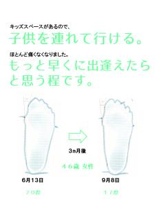 外反母趾治療HY様の外反母趾角度