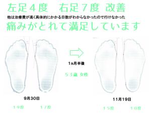 外反母趾治療TM様の外反母趾角度