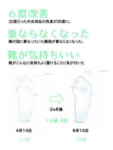 外反母趾治療SK様のアンケートと外反母趾角度。『隣の指に重なっていた親指が重ならなくなった。靴がこんなに気持ちよく履けることに気が付いた』