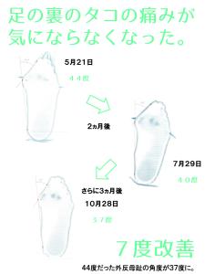 外反母趾治療の女性のアンケート。『『足の裏のタコの痛みが気にならなくなった』』