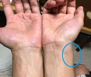手のひらを上にして両手首を合わせて上から撮影した写真