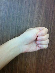 左手の親指を軽く握りながら手首を小指側に曲げるフィンケルシュタインテスト