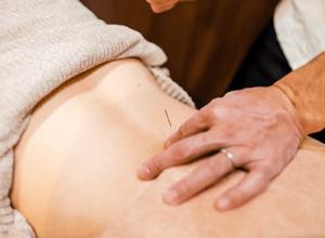 交通事故による腰痛の患者様の腰への鍼灸治療