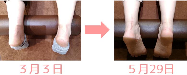 アキレス腱断裂後のリハビリ前後のむくみを比較したふくらはぎの写真
