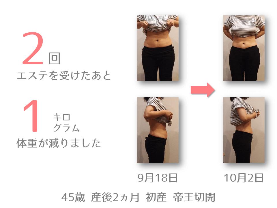 H様 45歳 出産後2ヵ月 産後エステを2回受けたあと、体重が1㎏減りました