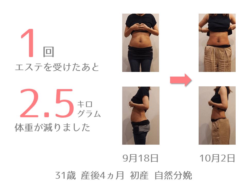 K様 31歳 出産後4ヵ月 産後エステを1回受けたあと、体重が2.5㎏減りました