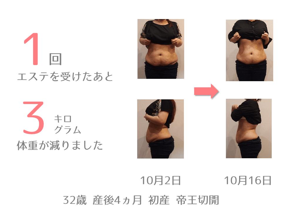 T様 32歳 出産後4ヵ月 産後エステを1回受けたあと、体重が3㎏減りました