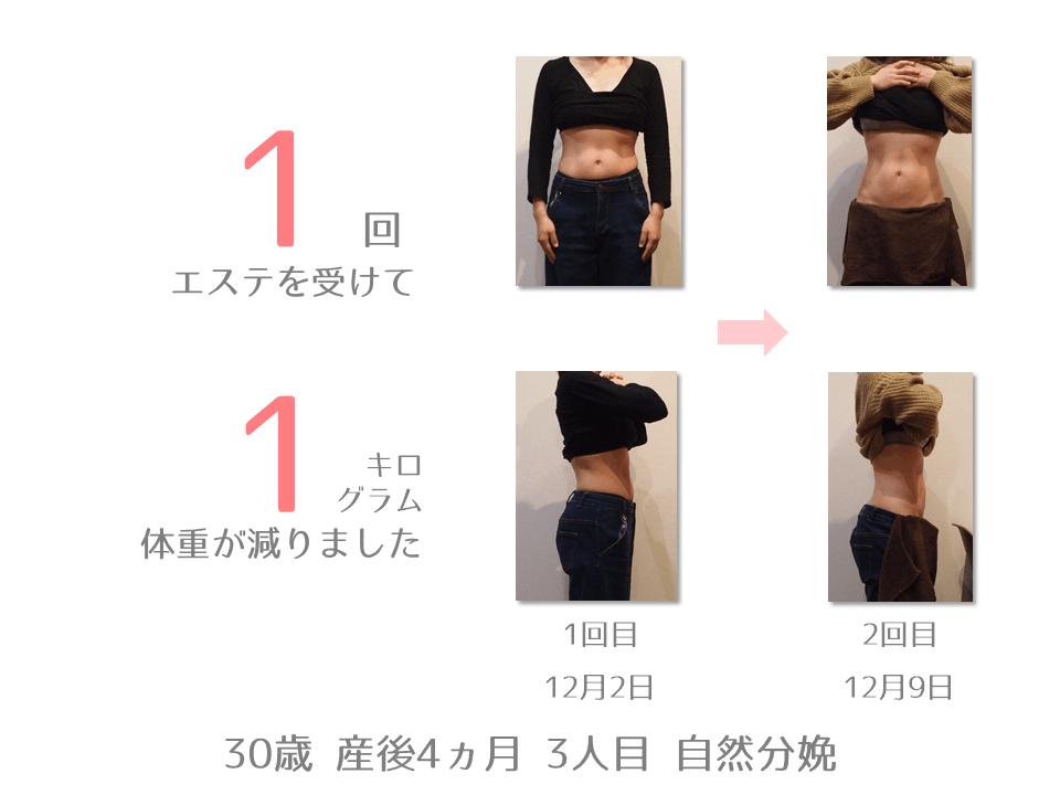 A様 30歳 出産後4ヵ月 産後エステを1回受けて、体重が1㎏減りました。12月2日から12月9日までの体型の変化