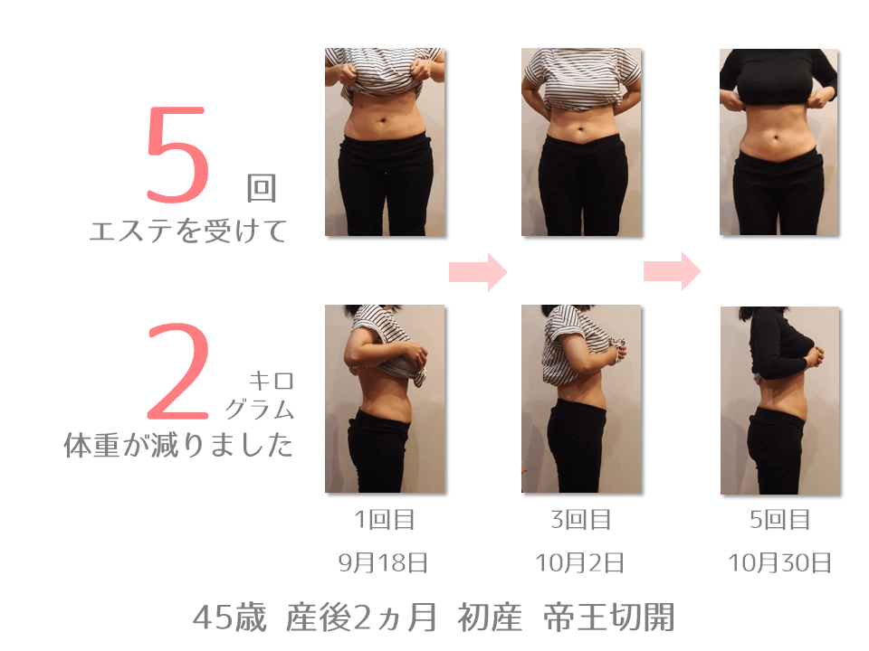 H様 45歳 出産後2ヵ月 産後エステを5回受けて、体重が2㎏減りました。9月18日から10月30日までの体型の変化