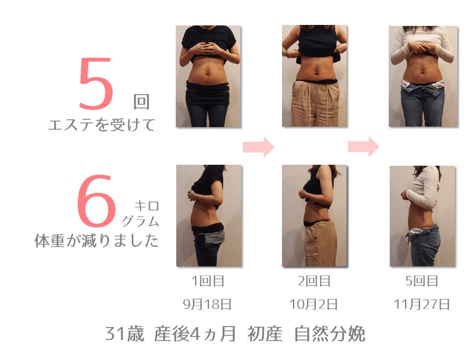 K様 31歳 出産後4ヵ月 産後エステを5回受けて、体重が6㎏減りました。9月18日から11月27日までの体型の変化