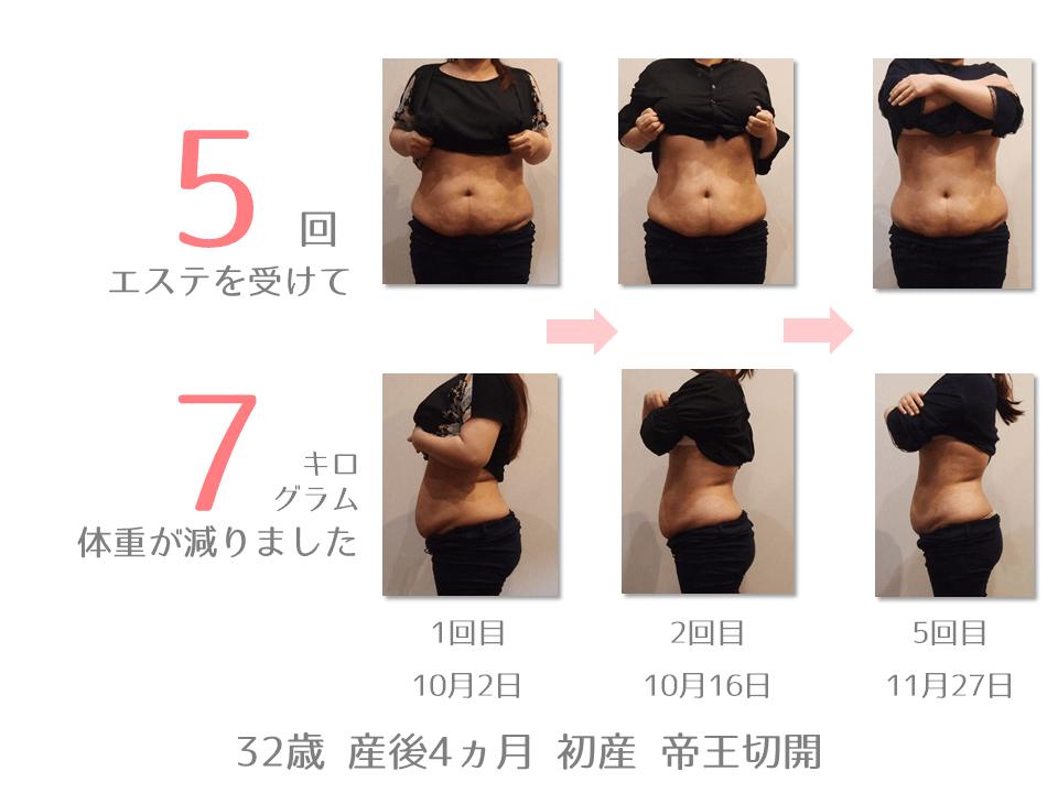 T様 32歳 出産後4ヵ月 産後エステを5回受けて、体重が7㎏減りました。10月2日から11月27日までの体型の変化
