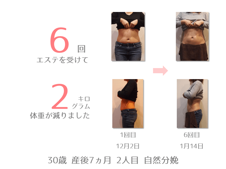 UN様 30歳 産後7カ月 2人目 自然分娩 産後エステを6回受けて2㎏体重が減りました