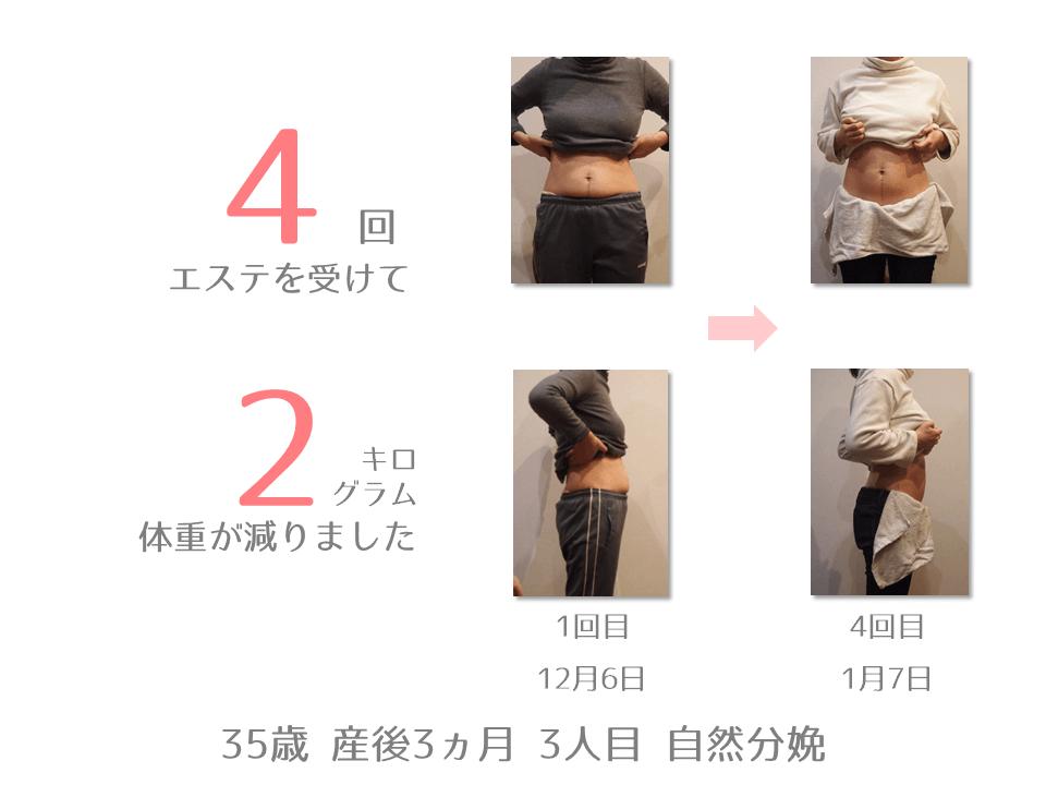 S様 35歳 産後3カ月 3人目 自然分娩 産後エステを4回受けて2㎏体重が減りました